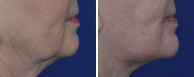 Facelift at Annapolis Cosmetic Surgery Specialists
