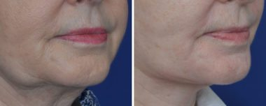 Facelift Facial Plastic Surgery Annapolis