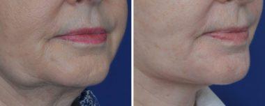 Facelift Facial Plastic Surgery Annapolis