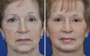 non-surgical laser skin resurfacing for face lines