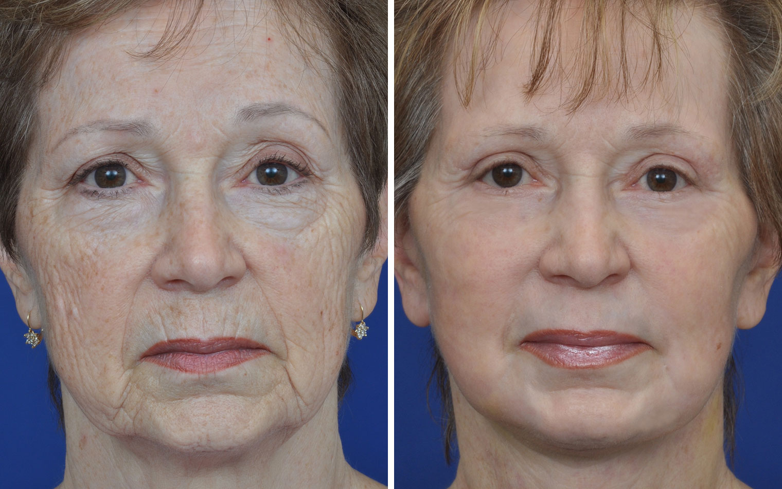 Mini Of Annapolis >> Facelift Before & After Photos Annapolis | Non Surgical Facelift