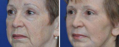 non-surgical laser skin resurfacing for wrinkles
