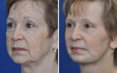 non-surgical laser skin resurfacing for wrinkles