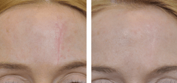 scar-removal-before-and-after