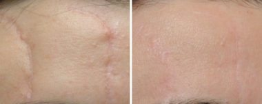 scar removal in Annapolis, MD