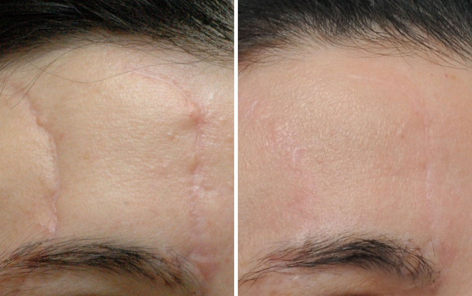 Scar removal annapolis md scar revision severna park another male patient with the scar on neck was treated using the running zplasty technique and lastly a female patient who had skin cancer reconstruction sciox Choice Image