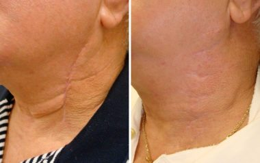 scar removal in Severna Park, MD