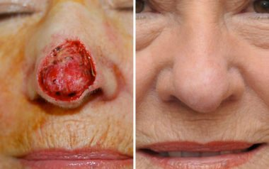 Skin Cancer Reconstruction in Maryland