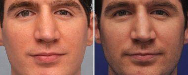 Scar Removal at Annapolis Plastic Surgery