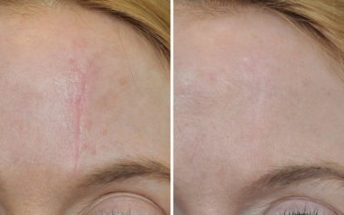 Scar Revision Before After Photos Annapolis