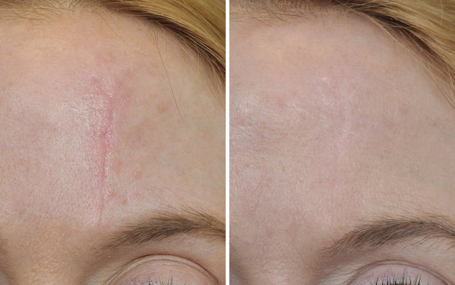 Scar removal before after photos annapolis md scar revision sciox Choice Image