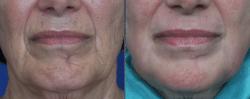 laser skin rejuvenation before and after