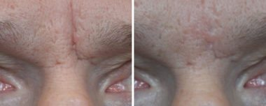 Wrinkle Reduction in Severna Park MD