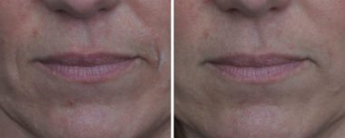 Erasing Wrinkles and Lines in Severna Park MD