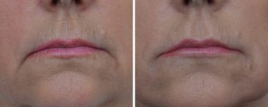 Facial Fillers in Annapolis MD