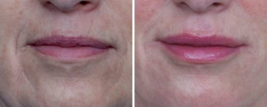 fillers for face before and after Annapolis MD