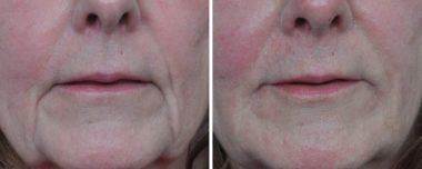 fillers for face before and after