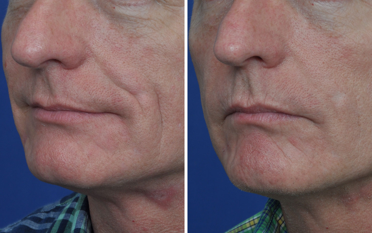 Juvederm before and after in Annapolis MD