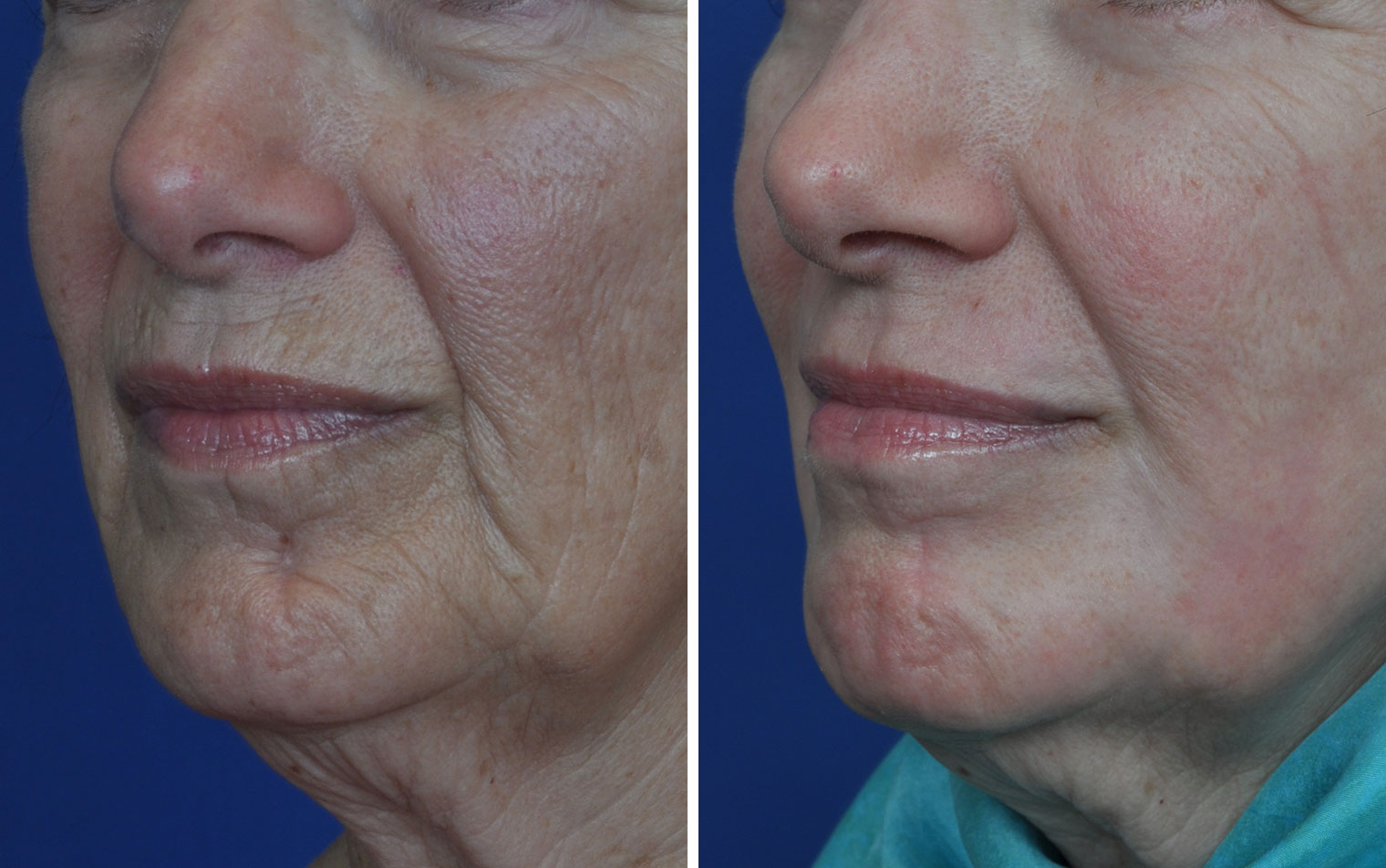 Laser facial resurfacing pictures