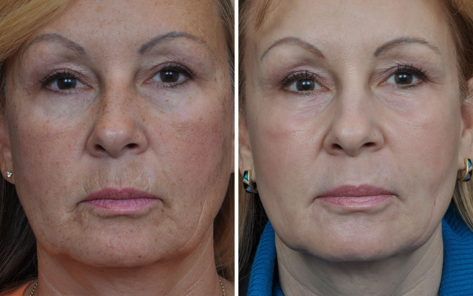 Laser Skin Resurfacing Before Amp After Annapolis Plastic