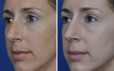 Severna Park Laser Skin Resurfacing