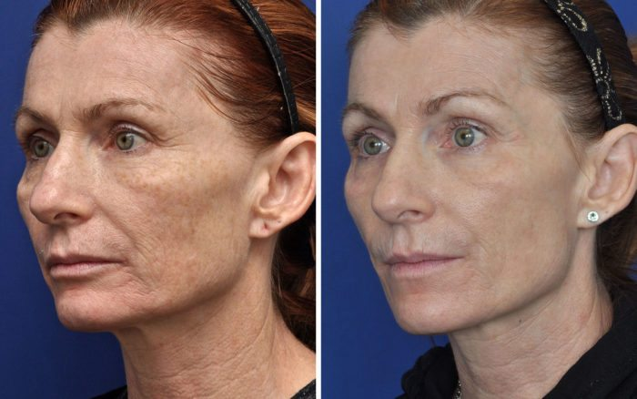 Laser Skin Resurfacing plastic surgery center