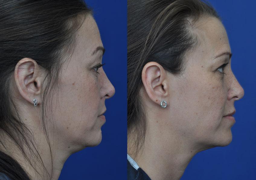 BODY Maryland facial liposuction