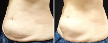 CoolSculpting Non-Surgical Procedure by Dr. Ambro