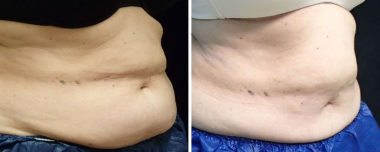 non-surgical fat reduction in Annapolis MD