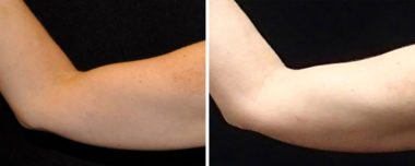 Coolsculpting fat-freezing results in Annapolis