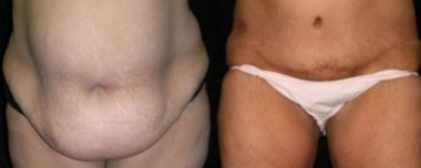 Tummy tuck in Annapolis Maryland