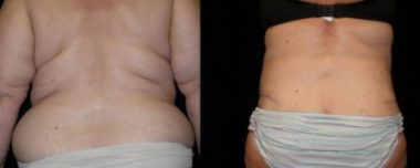 tummy tuck treatment in Maryland