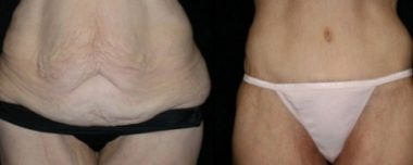 tummy tuck before and after surgery annapolis md