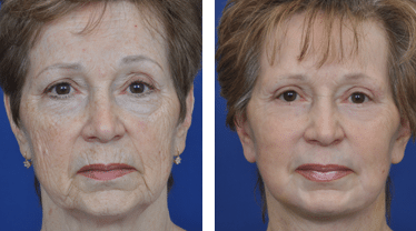 facelift-neck-lift-before-and-after-patient-1b
