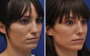 Rhinoplasty Specialist Dr. Ambro Results