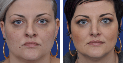 rhinoplasty-before-and-after-patient-5a
