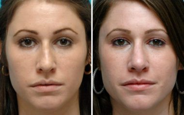 Annapolis, MD Rhinoplasty Doctor Ambro results