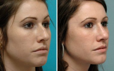 Rhinoplasty in Annapolis before and after