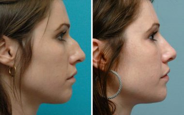 Rhinoplasty in Annapolis with Dr Ambro
