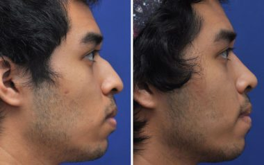 Rhinoplasty in Annapolis Before & After
