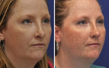 Rhinoplasty in Annapolis