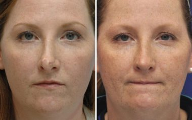 Annapolis Rhinoplasty Before and After
