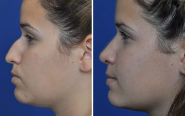 rhinoplasty with facial plastic surgery specialists