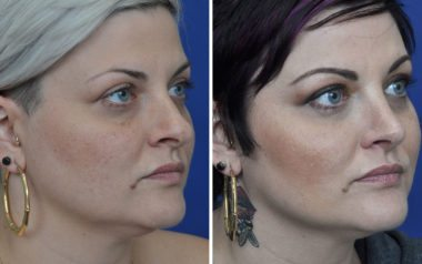 rhinoplasty in Annapolis Maryland