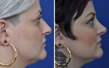 rhinoplasty nose job in Annapolis Maryland