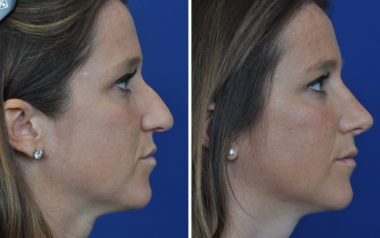 Annapolis Rhinoplasty with Doctor Ambro and Chappell