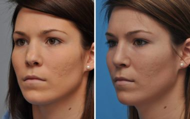 Nose Reshaping with Rhinoplasty in Annapolis MD