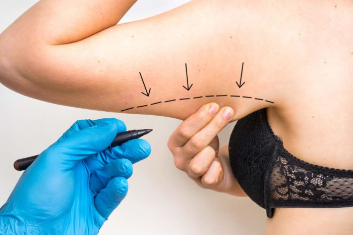 arm lift surgery annapolis md