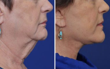 Annapolis Facelift Patient 6 Before and After Profile
