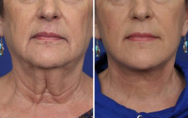 Annapolis Facelift Patient 6 BeforeAfter Frt